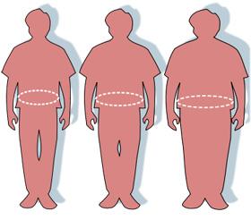 השמנה ועודף משקל. מקור: ויקיפדיה רשיון PD. איור באדיבותUS-FDA. Pharos Victovoi